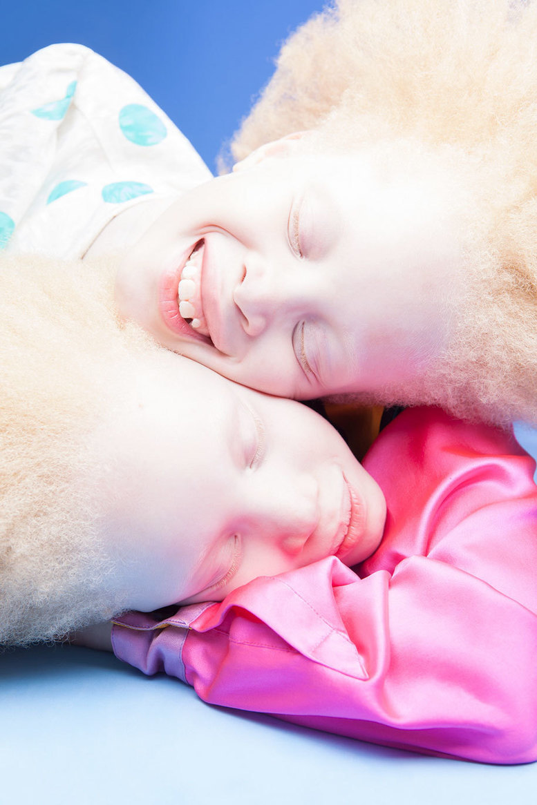 Albino Twins From Brazil Are Challenging The Fashion Industry With Their Unique Beauty