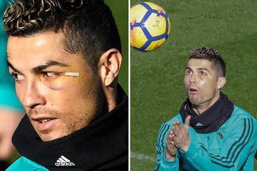 Cristiano Ronaldo does not back out of challenges in Real Madrid training despite sporting black eye
